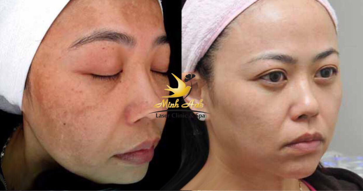 Khách hàng trước và sau khi điều trị nám tại Minh Anh Laser Clinic & Spa.