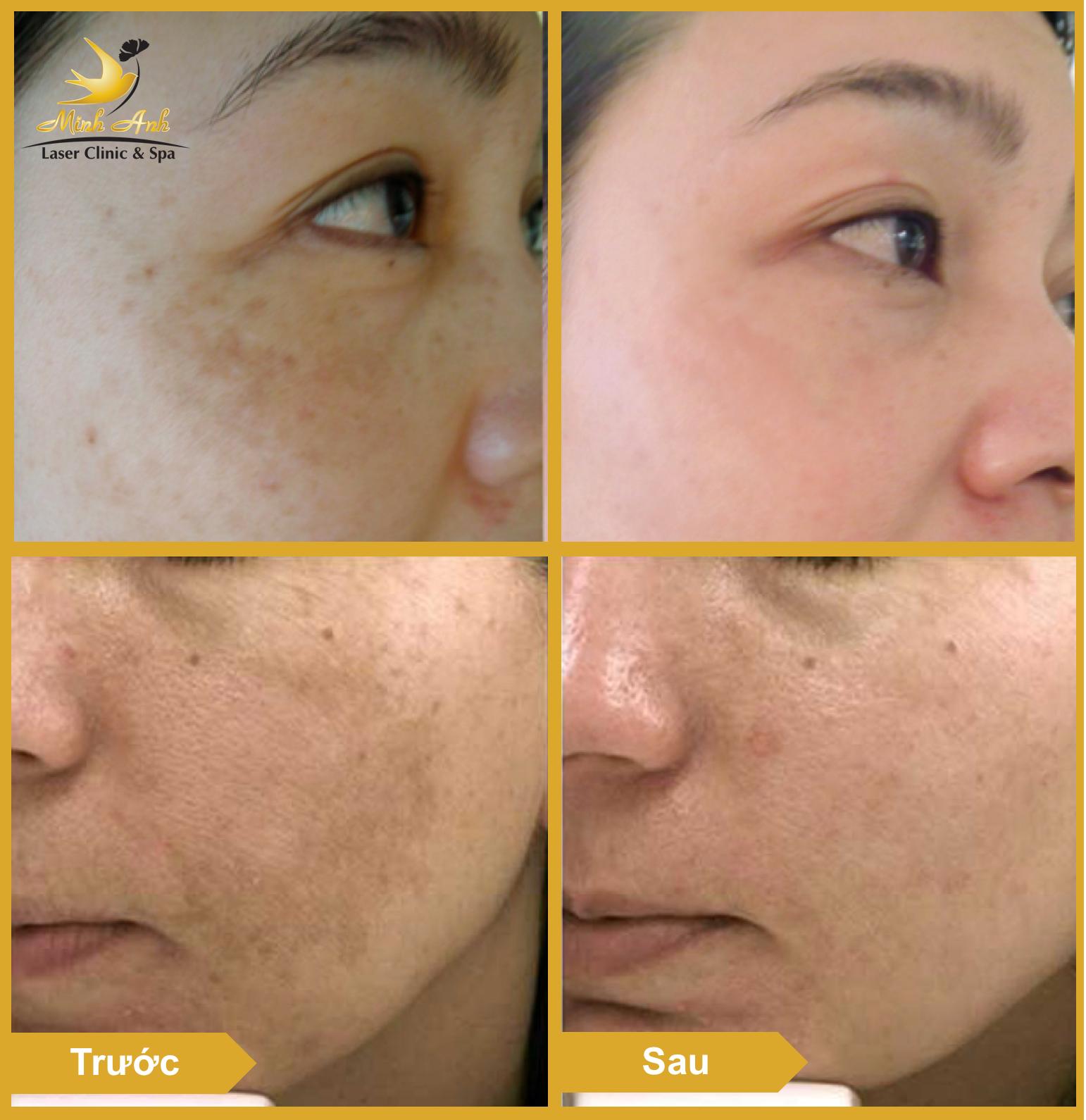 Hình ảnh khách hàng sau liệu trình trị nám tại Minh Anh Laser Clinic & Spa